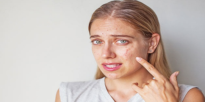 Tips On How To Deal With Rosacea Breakouts