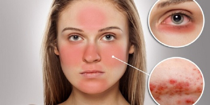 Great, Good Feelings With Rosacea Treatment