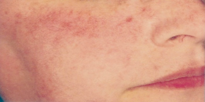 Phases Of Rosacea and Early Diagnosis